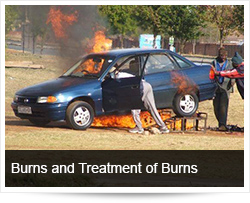 Burns and Treatment of Burns - Frequently asked Questions