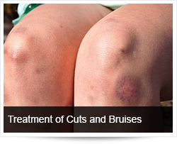 Treatment of and Response to Cuts and Bruises